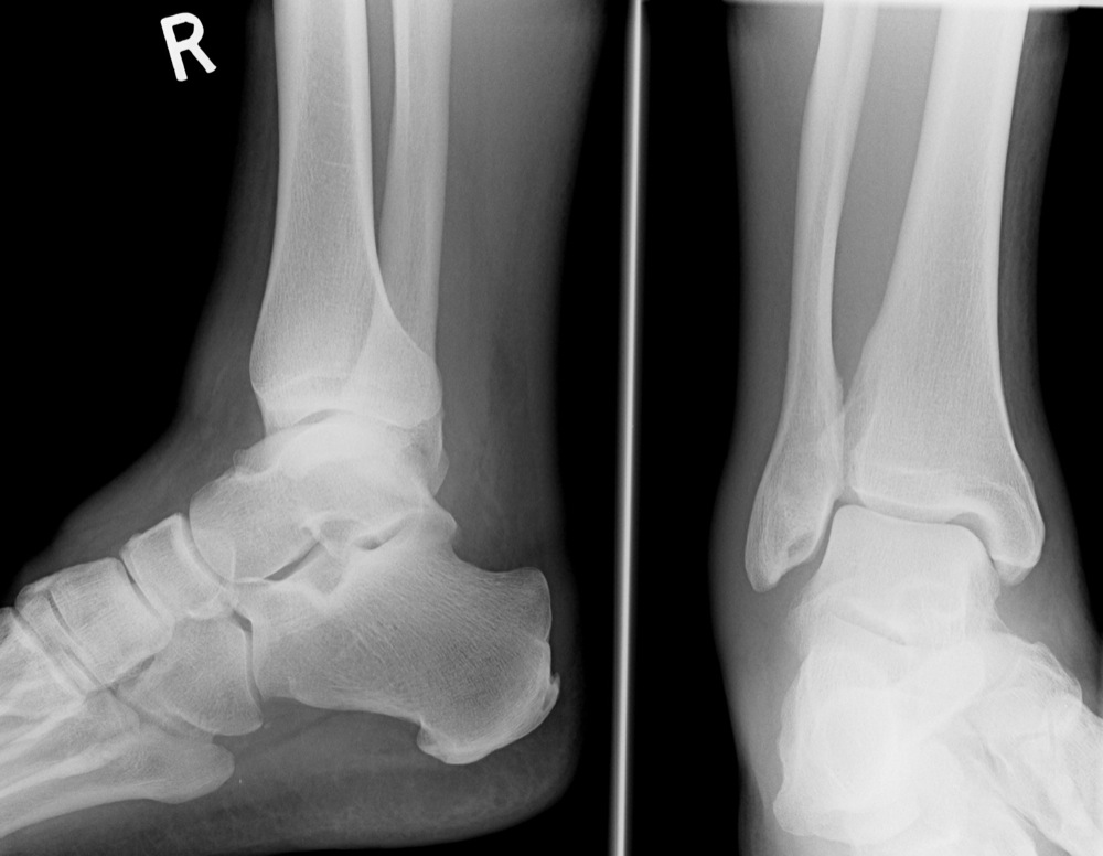The Ankle Accessory Ossicles Foot