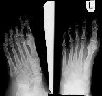 Missed fracture anterolateral calcaneum  - 2nd attendance