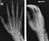 Fracture distal shaft 5th metacarpal