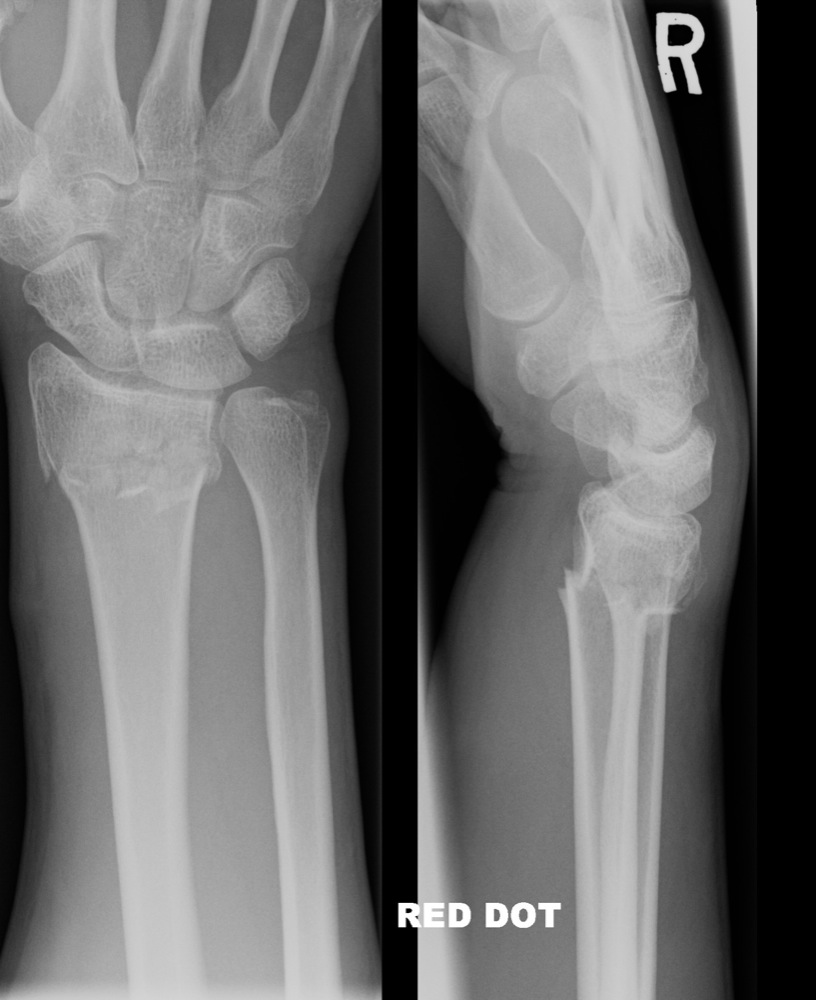 smith fracture images