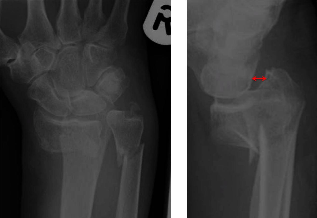 smith fracture distal radius